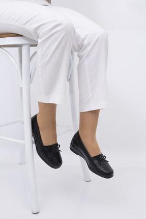 THE FRİDA SHOES Ortopedik Kadın Ayakkabı