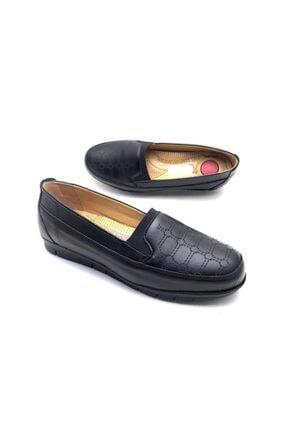 Umut Kadın Siyah Tam Ortopedik Ayakkabı