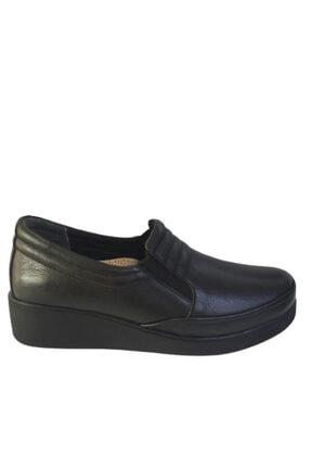 MP 202 - 4131 Zn Siyah Içi Dışı Hakiki Deri Ortopedik Kadın Ayakkabı