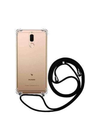 Molly Huawei Mate 10 Lite Uyumlu Siyah Boyun Askılı Ipli Şeffaf Silikon Kılıf
