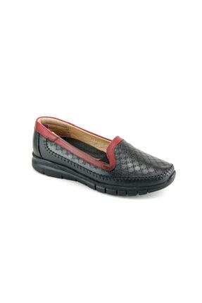 Forelli 29433 Günlük Ortopedik Bayan Ayakkabı - Siyah