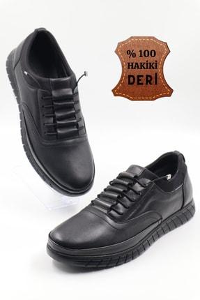nazenintasarımlar Erkek Siyah Ortopedik Iç Dış Komple Deri Ultra Rahat Günlük Ayakkabı