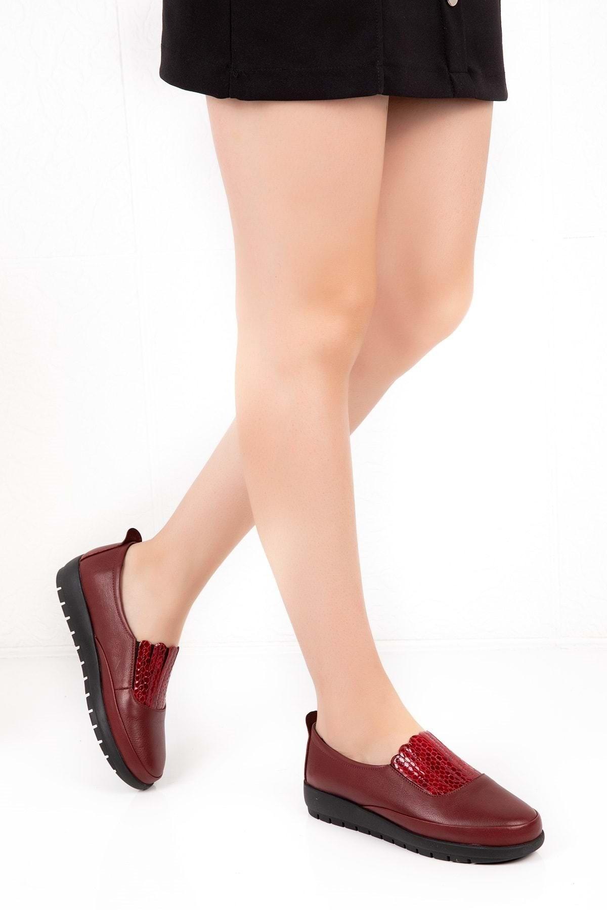 Gondol Kadın Bordo Deri Ortopedik Taban Günlük Ayakkabı 1
