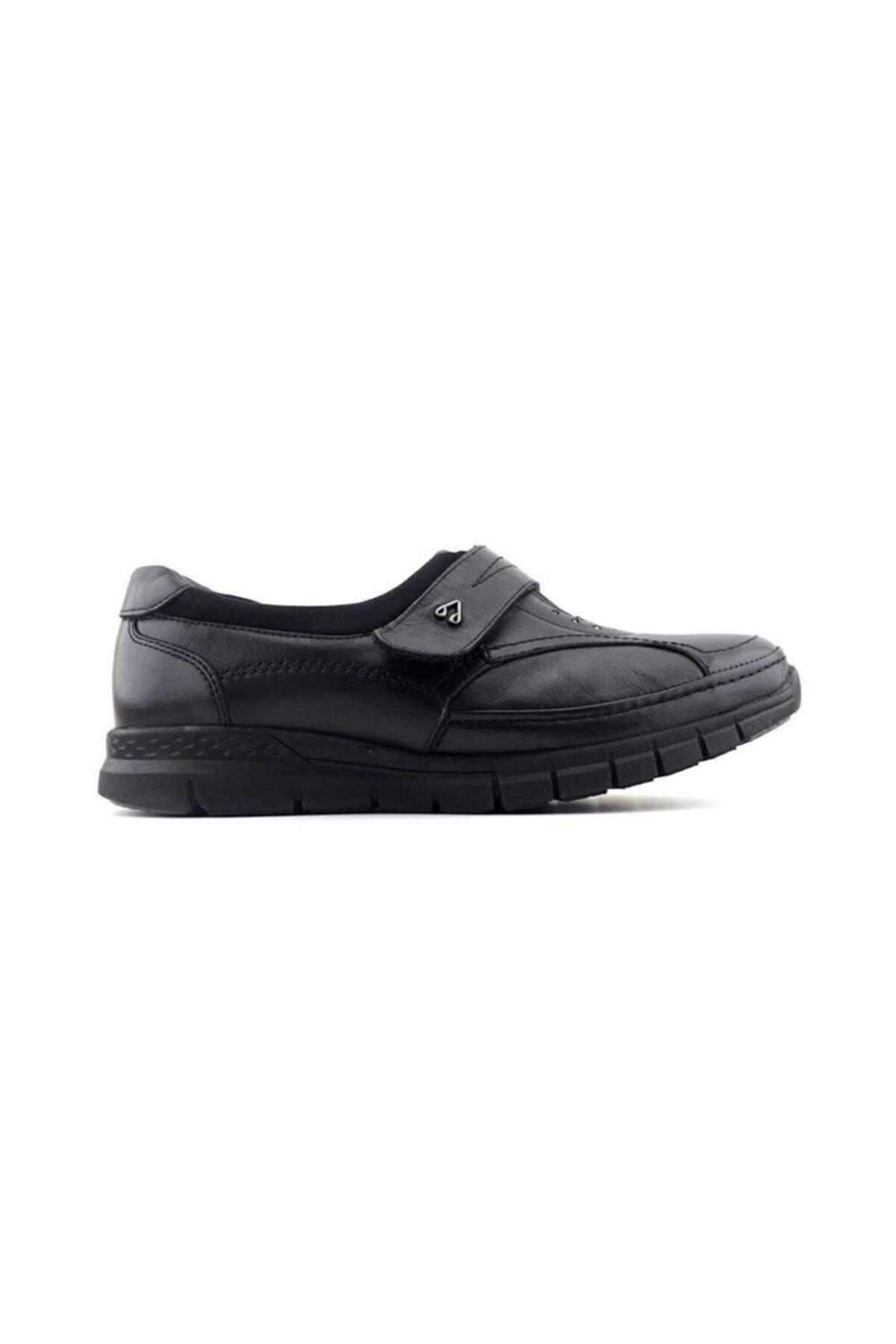 Forelli 29445 Kadın Siyah Deri Kemik Çıkıntısına Özel Ayakkabı 1