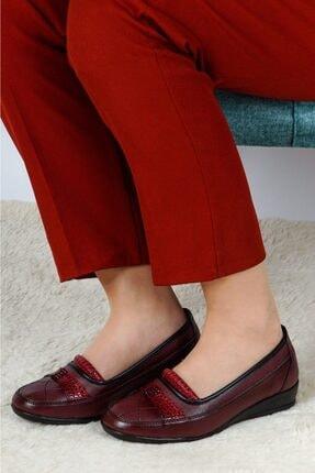 THE FRİDA SHOES Kadın Bordo Ortopedik Ayakkabı