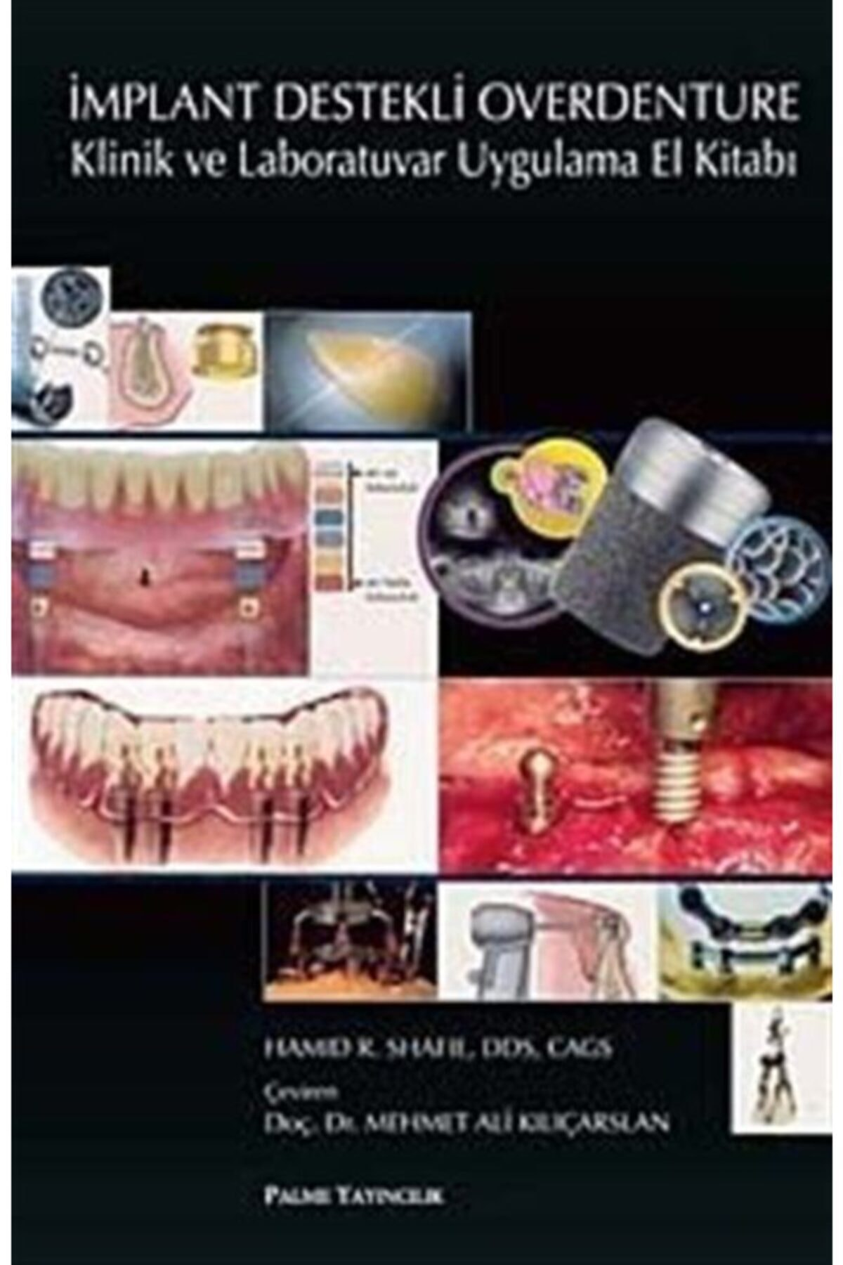 Palme Yayınevi Implant Destekli Overdenture & Klinik Ve Laboratuvar Uygulama El Kitabı 1