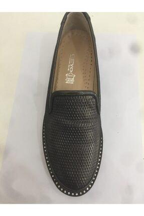 Ceyo 403 Siyah Bayan Anatomik Ayakkabı