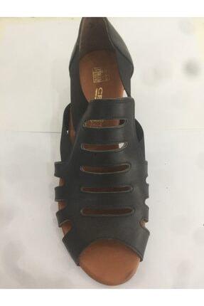 Ceyo 06 Siyah Bayan Anatomik Ayakkabı