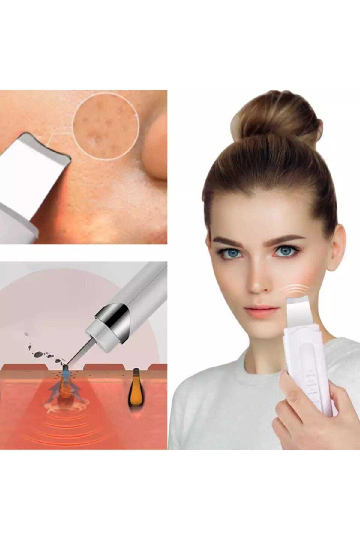 TİNEKE Ultrasonic Yüz Ve Cilt Soyma Temizleyici Spatula Cihazı 1