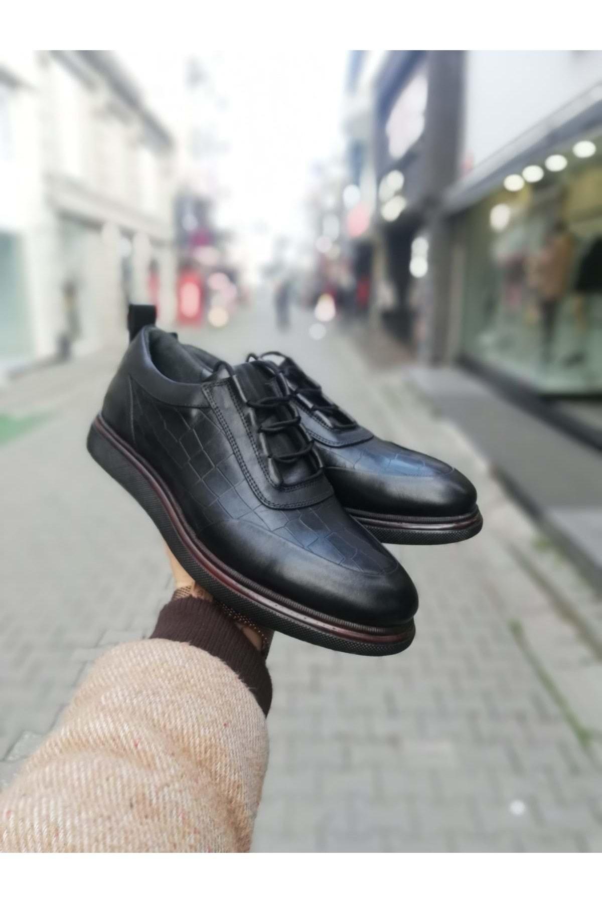 idol ayakkabı Erkek Siyah Desenli Poli Casual Ayakkabı 1
