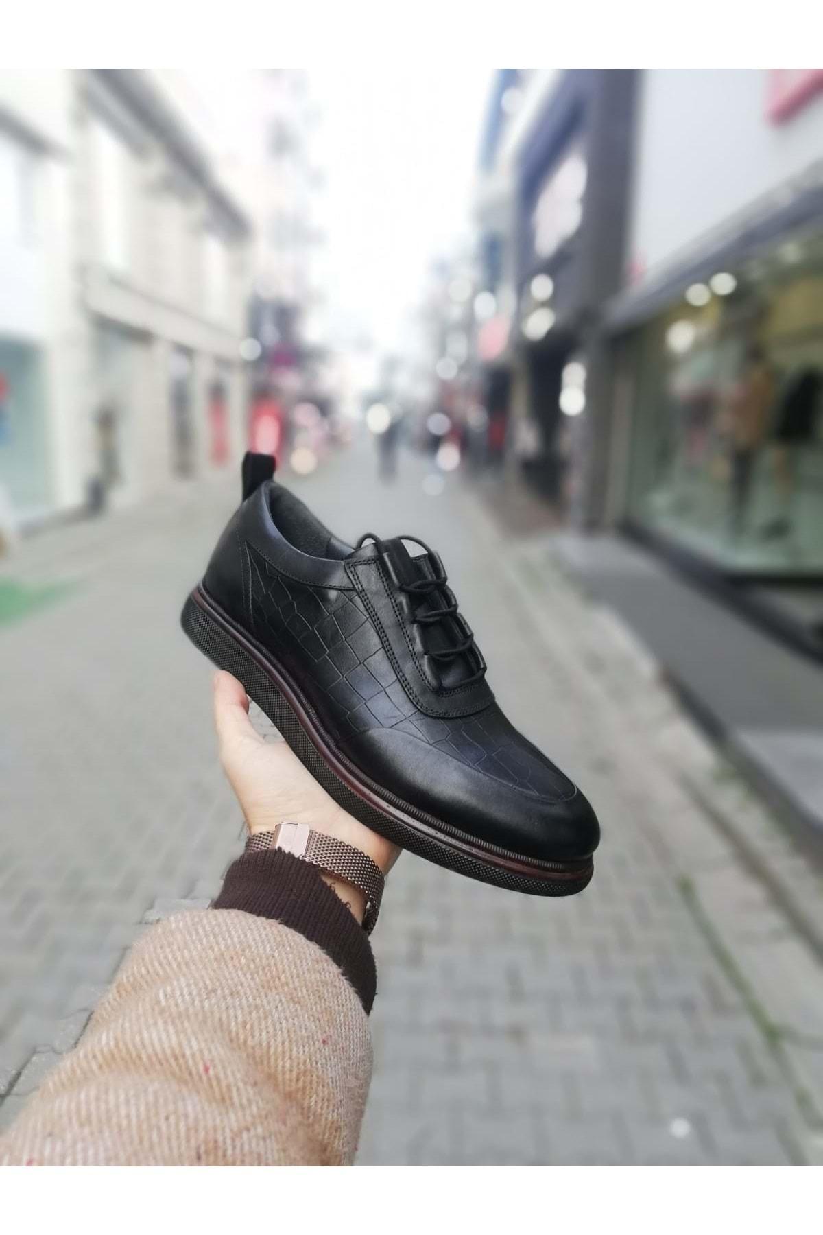 idol ayakkabı Erkek Siyah Desenli Poli Casual Ayakkabı 2