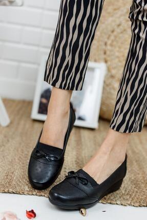 MUGGO A10 Siyah Ortopedik Anne Ayakkabı