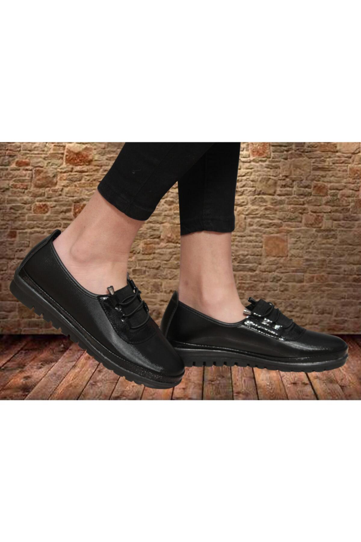 Witty Kadın Günlük Siyah Ortopedik Babet Ayakkabı 1