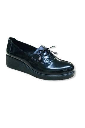 ERS Air Comfort Kadın Siyah Rugan Hakiki Deri Ayakkabısı