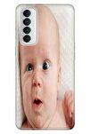 Reno 4 Pro Uyumlu Kılıf Pure Modern Desenli Silikon Şaşı Bebek