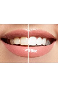 Natural Teeth Whıtenıng - Simple Care 2
