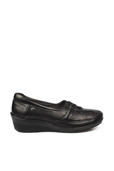 Forelli Kadın Siyah Deri Kemik Çıkıntısına Özel Comfort Ayakkabı 26217