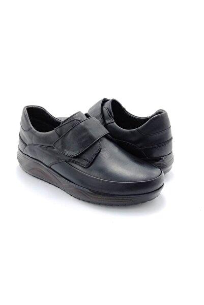 Delta Hakiki Deri Siyah Cırtlı Günlük Ayakkabı