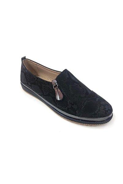 Markopark Siyah Fermuarlı Günlük Ortopedik Kadın Ayakkabı