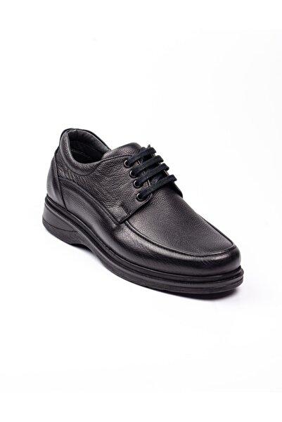 Modesa 101 Siyah Deri Bağcıklı Erkek Günlük Ayakkabı Siyah-43
