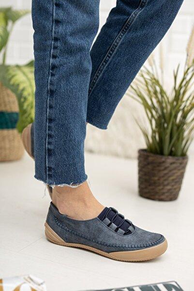 epaavm Ortapedik Ped Kadın Lacivert Ayakkabı