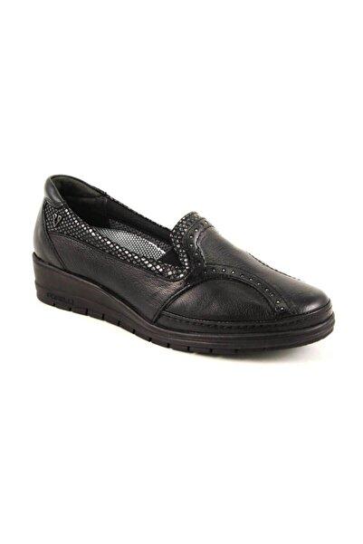 Forelli Kadın Siyah Deri Kemik Çıkıntısına Özel Comfort Casual Ayakkabı 25109