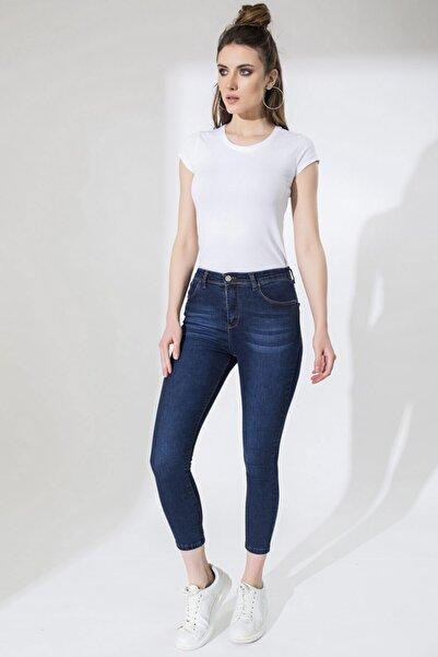 Arma Life Kadın Taşlanmış Pantolon - Taş Lacivert ODL-9YB13262PNT