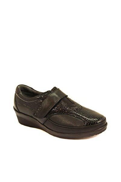 Forelli Kadın Siyah Deri Kemik Çıkıntısına Özel Comfort Ayakkabı 26213