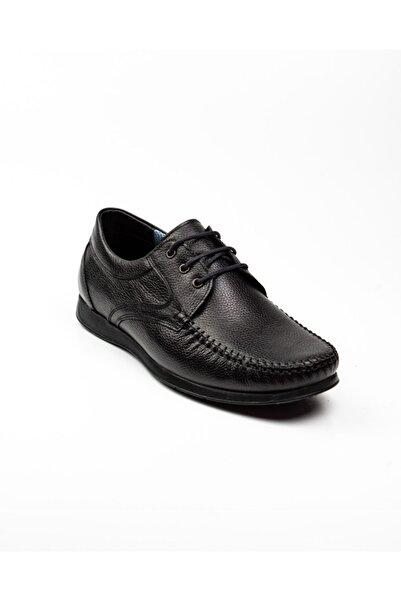 Nobel 930 Bağcıklı Deri Günlük Erkek Ayakkabı Siyah Siyah-39