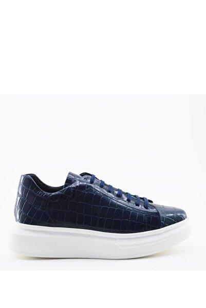 İgs Erkek Deri Günlük Ayakkabı I21s-21111-5 M 1000 Lacivert Kroko