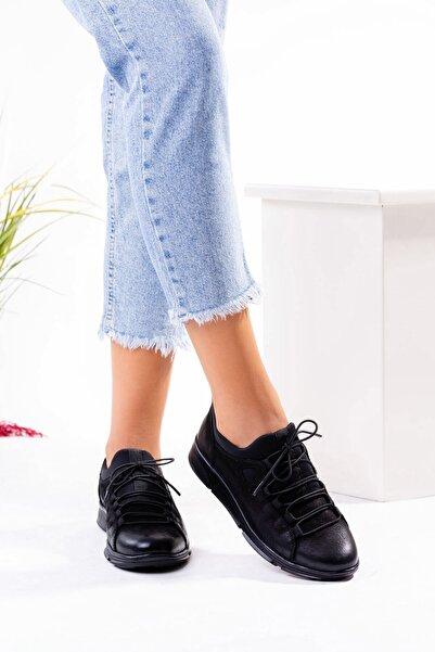 Venüs Kadın Siyah Hakiki Deri Lastik Bağcıklı Ayakkabı