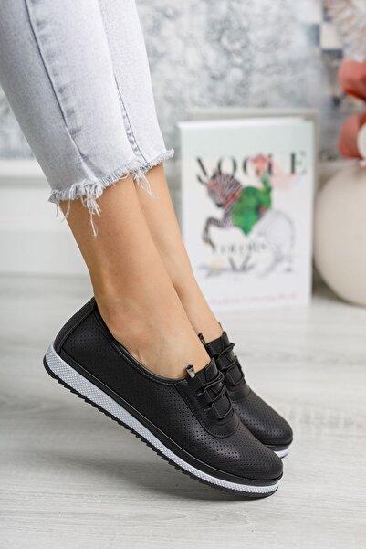 epaavm Ortopedik Pedli Lazerli Siyah Ayakkabı