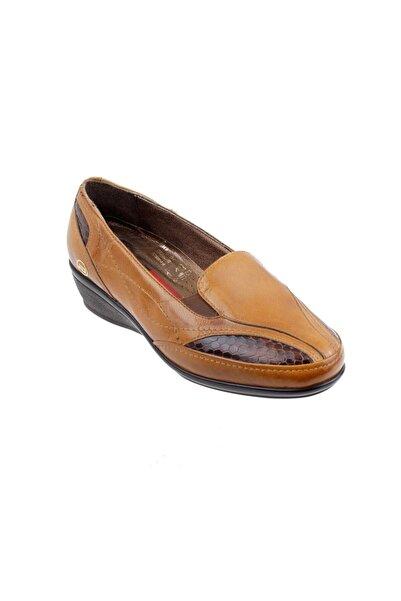 ATİKER 152079 Deri Ortopedi Bayan Ayakkabı