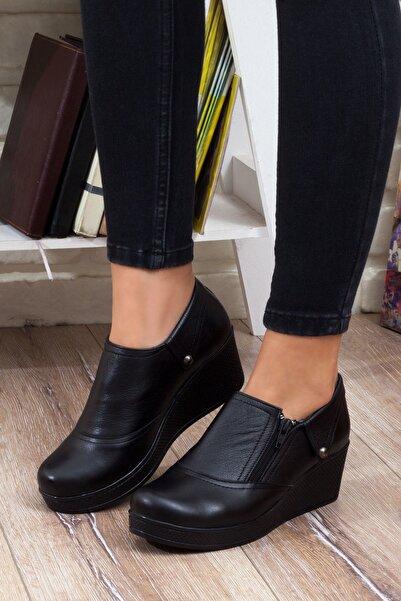 DERİMİSS Kadın Hakiki Deri Ortopedik Ayakkabı