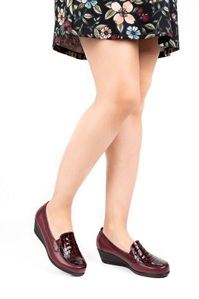 Gondol Hakiki Deri Ortopedik Taban Ayakkabı Vdt.2606 - Bordo Croco - 42