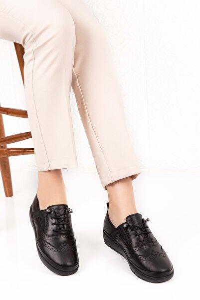 Gondol Kadın Siyah Deri Ortopedik Taban Günlük Ayakkabı