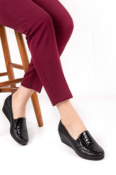 Gondol Kadın Siyah Hakiki Deri Ortopedik Taban Ayakkabı Vdt.2606