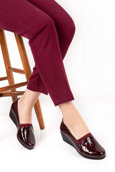 Gondol Kadın Bordo Deri Anatomik Taban Ayakkabı