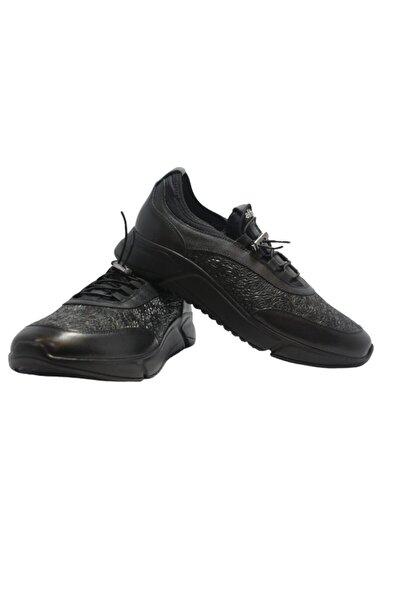 Elite Erkek Siyah Desenli Bağcıksız Ayakkabı