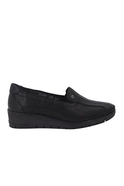 Forelli Siyah Deri Ortopedik Kadın Ayakkabı 25182