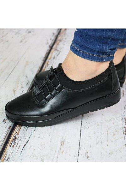 Gökcen Kadın Siyah Deri Ortopedik Ayakkabı