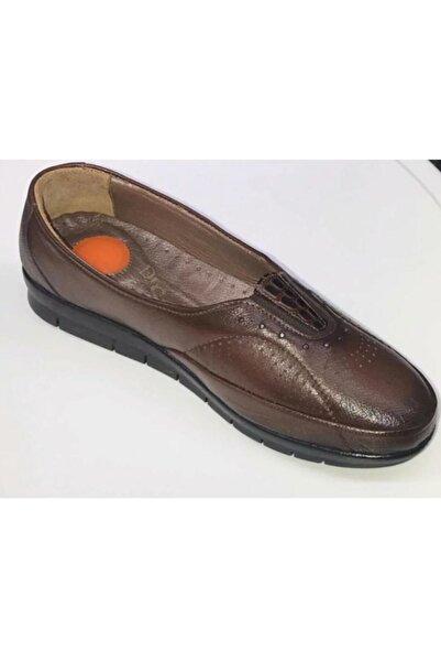 Sude Topuk Dikeni Ayakkabısı