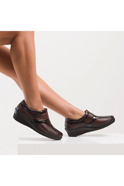 Forelli Tam Ortopedik Hakiki Deri Kemik Çıkıntı Için Kadın Ayakkabı 26213