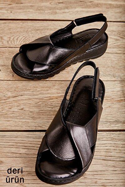Bambi Sıyah Kadın Sandalet L0529001803