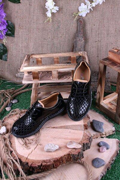 Akıllı Şirin Erkek Çocuk Siyah Rugan Bağcıklı Ortopedik Ayakkabı