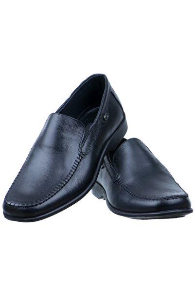 Erdem Erkek Siyah Baskılı Burnu Dikişli Günlük Ayakkabı