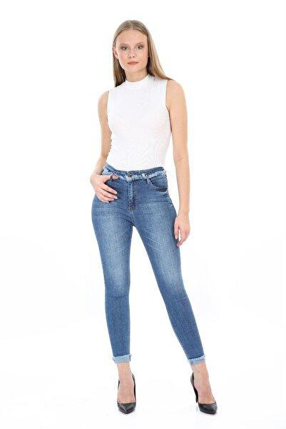 SİVAİST Kadın Mavi Yıpratmalı Yüksek Bel Skinny Jeans