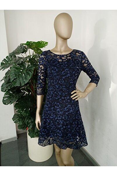 Liu Jo Kadın Güpürlü Elbise