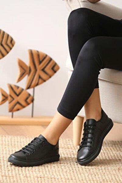 Pembe Potin Casual Ayakkabı