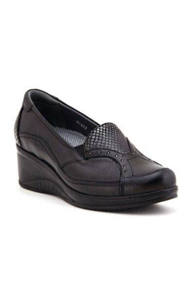 Forelli 57603 Kadın Siyah Kemik Çıkıntısına Özel Deri Ayakkabı